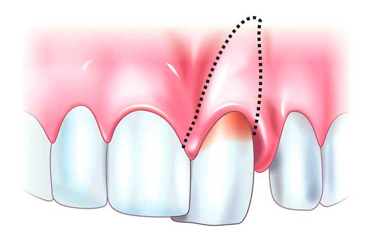 Шатается зуб: что делать