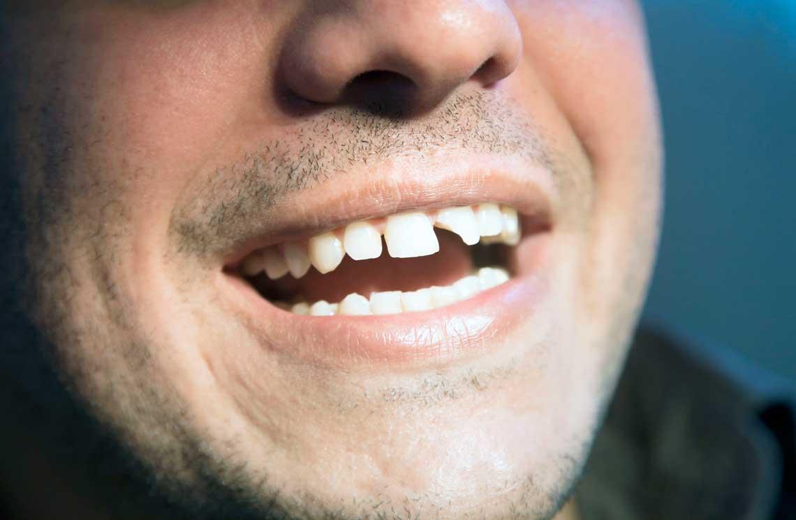 травмы зубов и лечение